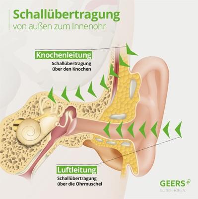 Knochenleitung Ohr